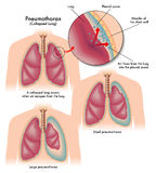 Pneumothorax Royalty Free Stock Photography