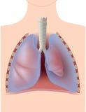 Pneumotorace Immagine Stock
