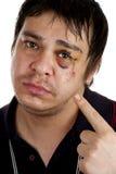 podbite oko mężczyzna target423_0_ obraz stock