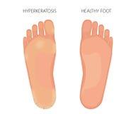 Podeszwowy Hyperkeratosis Obraz Royalty Free