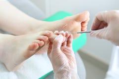 podiatry Ο γιατρός αναπτύσσει toenail Στοκ Εικόνες