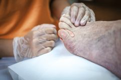 Podiatry. Doctor curing an elderly patient feet Stock Photos