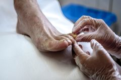 Podiatry. Doctor curing an elderly patient feet Stock Image