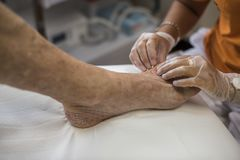 Podiatry. Doctor curing an elderly patient feet Stock Photo