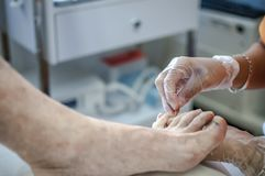 Podiatry. Doctor curing an elderly patient feet Stock Images