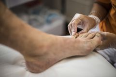 Podiatry. Doctor curing an elderly patient feet Stock Photography