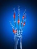 Podkreślająca artretyczna ręka Fotografia Royalty Free
