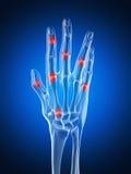 Podkreślająca artretyczna ręka Zdjęcia Royalty Free