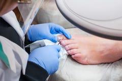 Podology治疗 对待趾甲真菌的足病医生 医生去除老茧、玉米和款待向内生长钉子 硬件修指甲 免版税库存图片