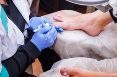 Podology behandling Fotvårdsspecialist som behandlar tånagelsvampen Doktorn tar bort valkar, havre, och ingrown fester spikar Mas royaltyfri bild