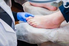 Podology-Behandlung Fußarzt, der Zehennagelpilz behandelt Doktor entfernt Schwielen, Körner und ingrown Nagel der Festlichkeiten  lizenzfreie stockbilder