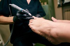 Podology, treatment of the affected areas of the feet, medical office, pedicure stock image