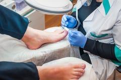 Podology treatment. Podiatrist treating toenail fungus. Doctor removes calluses, corns and treats ingrown nail. Hardware manicure. Health, body care concept Stock Photo