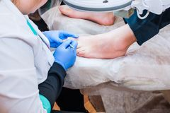 Podology treatment. Podiatrist treating toenail fungus. Doctor removes calluses, corns and treats ingrown nail. Hardware manicure. Health, body care concept Stock Photography