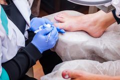 Podology treatment. Podiatrist treating toenail fungus. Doctor removes calluses, corns and treats ingrown nail. Hardware manicure. Health, body care concept royalty free stock image