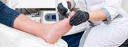 Podology treatment. Podiatrist treats foot. Podiatry doctor or dermatologist treats the patient in modern clinic stock photo