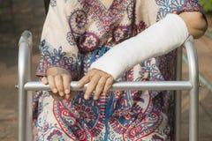Poignet cassé par femme supérieure utilisant le marcheur Images libres de droits