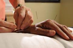 Pointeaux d'acuponcture Photo libre de droits