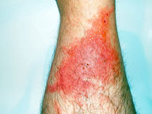 Poison Ivy Rash. And associated blisters on the front of a lower leg Stock Photo