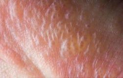 Poison Ivy Rash. Close up macro poison ivy rash blisters on human skin Stock Image