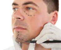 pojęcia odosobniony chirurgii plastycznej biel Ręka w rękawiczkowej ocechowanie twarzy Zdjęcia Royalty Free