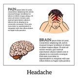 Pojęcie migrena, móżdżkowa nakreślenie ilustracja ilustracja wektor