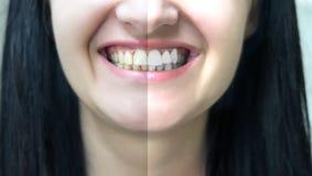 Pojęcie zębów bieleć Obraz Royalty Free