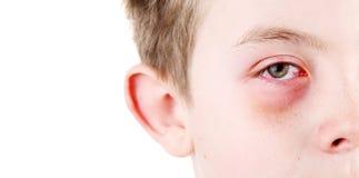 Pojke med ett sårat öga royaltyfria bilder