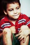 Pojke med skrapade knä Royaltyfria Foton