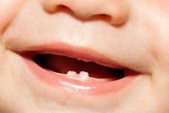 Pojke med tänder Royaltyfria Foton