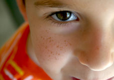pojke vänd mot fräkne Royaltyfria Bilder