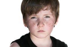 pojkefräknebarn Arkivfoto