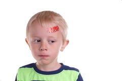 Pojken har skada på pannan royaltyfri fotografi