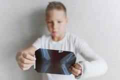 Pojken med en bruten hand ser röntgenstrålen Röntga i händerna av en ledsen pojke med en bruten arm arkivbild