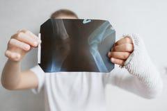 Pojken med en bruten hand ser röntgenstrålen Röntga i händerna av en ledsen pojke med en bruten arm Royaltyfri Bild