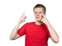 Pojken, tonåringen med en kräm för en ungdomlig hud för problem, mot fläckar Royaltyfri Foto