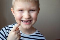Pojkesaknaden mjölkar tänder Royaltyfria Foton