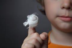 pojkewound Fotografering för Bildbyråer