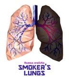 Poli polmoni e bronco umani realistici bassi con il inflamma del cancro illustrazione di stock