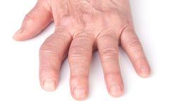 Poliartritis reumatoide de las manos aisladas en el fondo blanco Imagen de archivo
