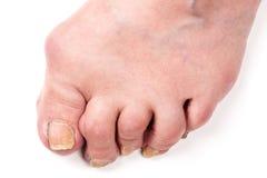 Poliartritis reumatoide a pie aislada en el fondo blanco Foto de archivo libre de regalías