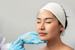 Policzka napełniacza traktowania wtryskowy zastrzyk Kobiety twarzy chirurgia plastyczna Pi?kno i kosmetyka poj?cie Skincare i ant zdjęcia royalty free