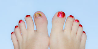 Polished toes with injury Stock Photos