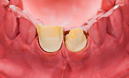 Polished tooth Stock Images