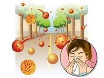 Pollen allergy. Medical illustration of the effects of the pollen allergy vector illustration