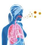 Pollen allergy / Hay fever royalty free illustration