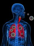 Pollen allergy illustration. 3d rendered illustration of a transparency male body with pollen in lung Stock Photography