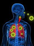 Pollen allergy illustration. 3d rendered illustration of a transparency male body with pollen in lung Stock Images