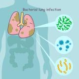 Polmone con l'infezione batterica del polmone Immagini Stock Libere da Diritti
