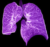Polmone CT Immagine Stock